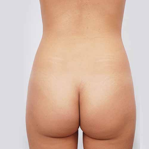 Brazilian Butt Lift Patient - Before Picture